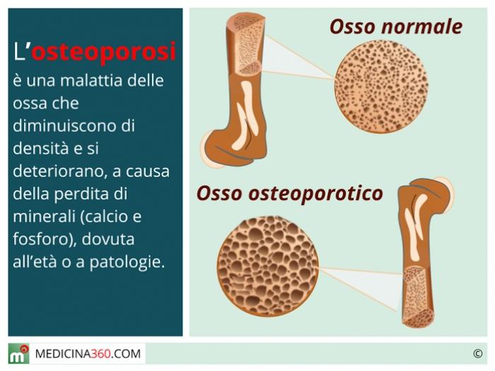 osteoporosi_700x525